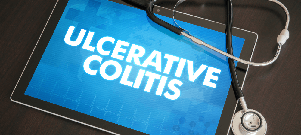 Living with Ulcerative Colitis and How to Manage It