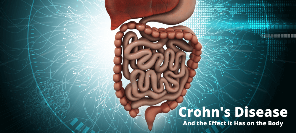 Crohn's Disease and the Effect it has on the Body